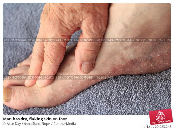 Сухость грибок кожи ног