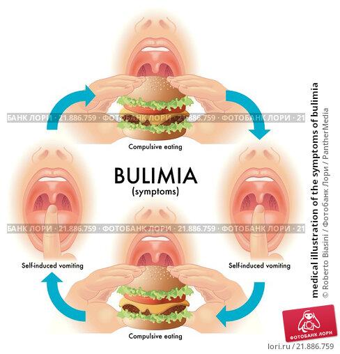 Купить «medical illustration of the symptoms of bulimia», иллюстрация № 21886759 (c) PantherMedia / Фотобанк Лори