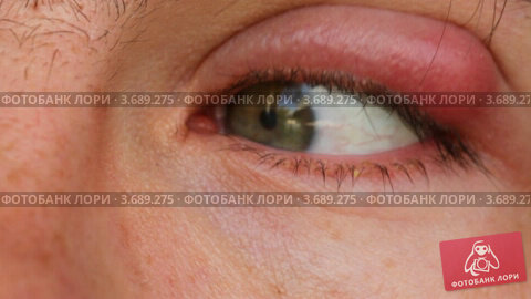 Купить «Мужской глаз с опухолью на веке», видеоролик № 3689275, снято 12 июля 2010 г. (c) Losevsky Pavel / Фотобанк Лори