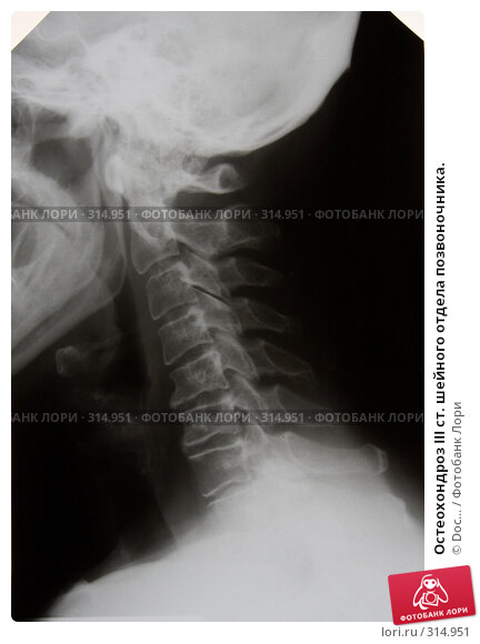 Остеохондроз III ст. шейного отдела позвоночника., фото № 314951, снято 8 июня 2008 г. (c) Doc... / Фотобанк Лори