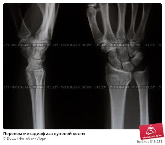 Перелом метадиафиза лучевой кости, фото № 313231, снято 6 июня 2008 г. (c) Doc... / Фотобанк Лори