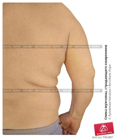 Спина мужчины, страдающего ожирением, фото № 194807, снято 4 февраля 2008 г. (c) Лукиянова Наталья / Фотобанк Лори