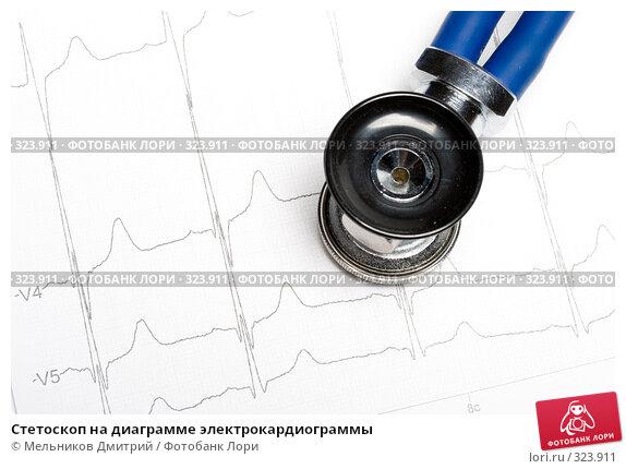 Стетоскоп на диаграмме электрокардиограммы, фото № 323911, снято 21 мая 2008 г. (c) Мельников Дмитрий / Фотобанк Лори