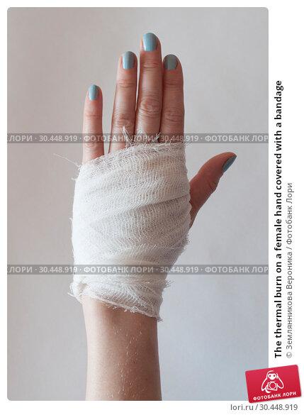 Купить «The thermal burn on a female hand covered with a bandage», фото № 30448919, снято 31 марта 2019 г. (c) Землянникова Вероника / Фотобанк Лори
