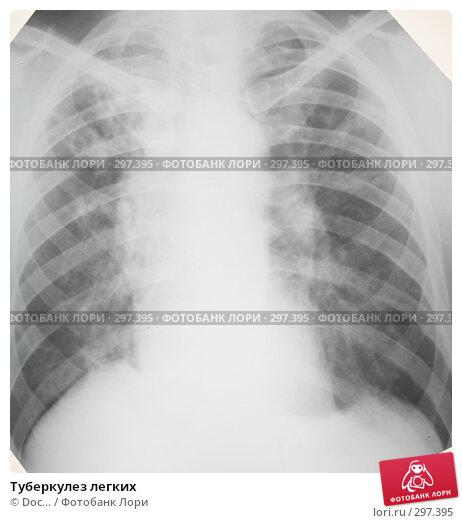 Туберкулез легких, фото № 297395, снято 24 мая 2008 г. (c) Doc... / Фотобанк Лори