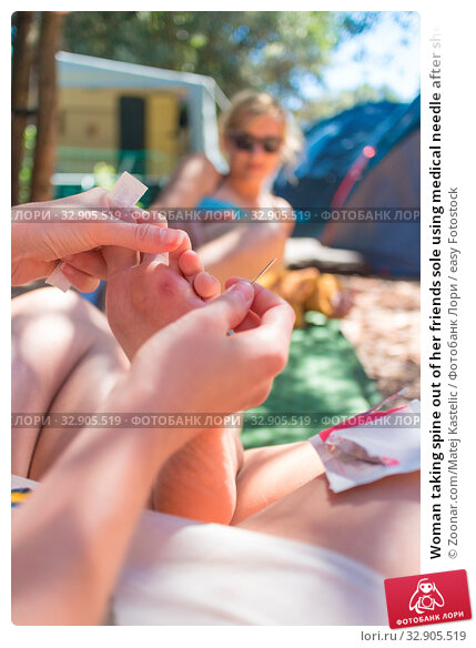 Woman taking spine out of her friends sole using medical needle after she stepped on sea urchin on summer vacations. Improvised domestic first aid. Стоковое фото, фотограф Zoonar.com/Matej Kastelic / easy Fotostock / Фотобанк Лори